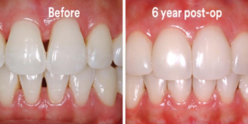 BioClear Diastema Closure and Black Triangle Closure  - Two Rivers Dental, Bolingbrook Dentist