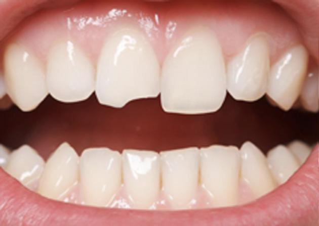 Cosmetic Bonding  - Two Rivers Dental, Bolingbrook Dentist