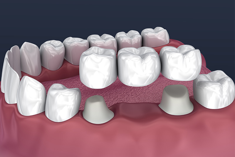 Crowns and Bridges, Inlays and Onlays  - Two Rivers Dental, Bolingbrook Dentist