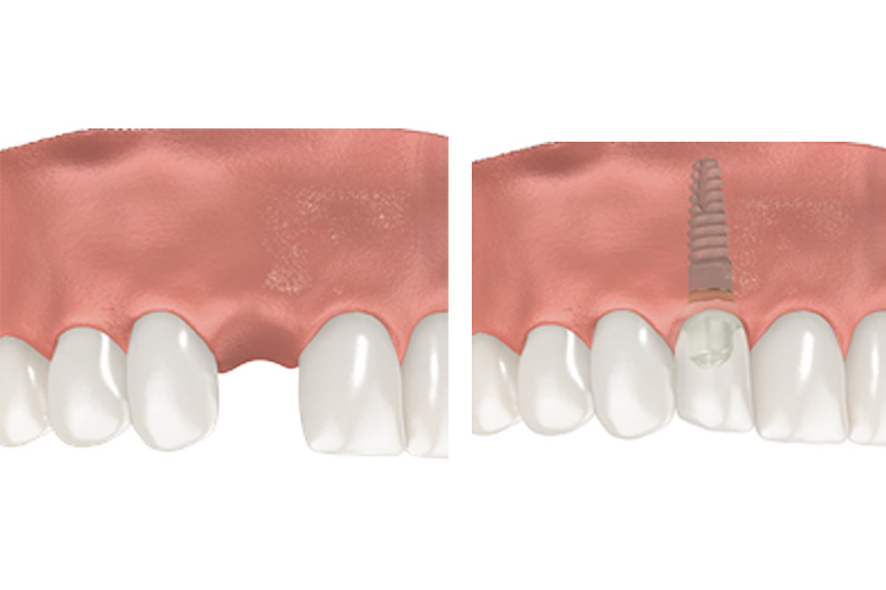 Dental Implants - Two Rivers Dental, Bolingbrook Dentist