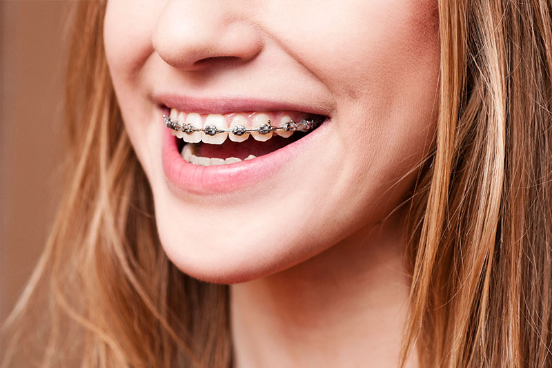 Orthodontics - Two Rivers Dental, Bolingbrook Dentist