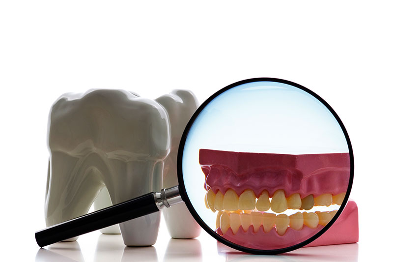 Root Canal - Two Rivers Dental, Bolingbrook Dentist