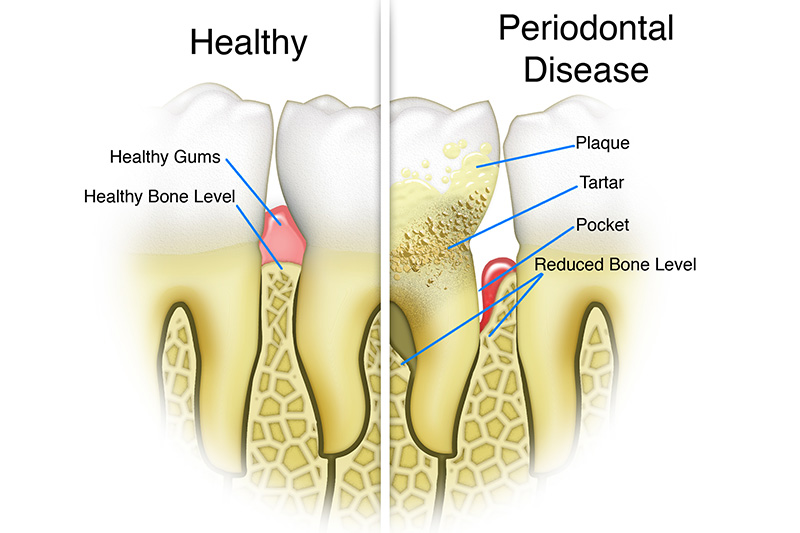 Scaling & Root Planings (Deep Cleanings)  - Two Rivers Dental, Bolingbrook Dentist