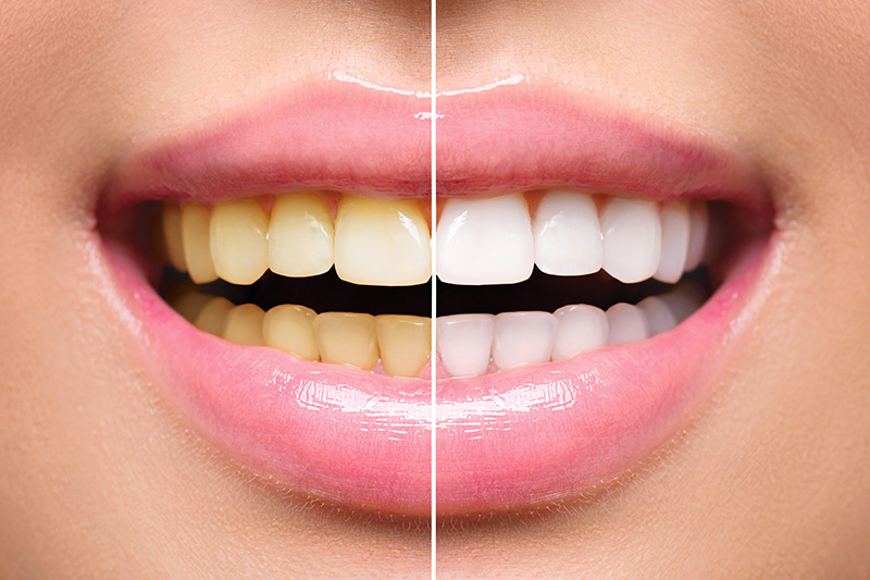 Teeth Whitening - Two Rivers Dental, Bolingbrook Dentist