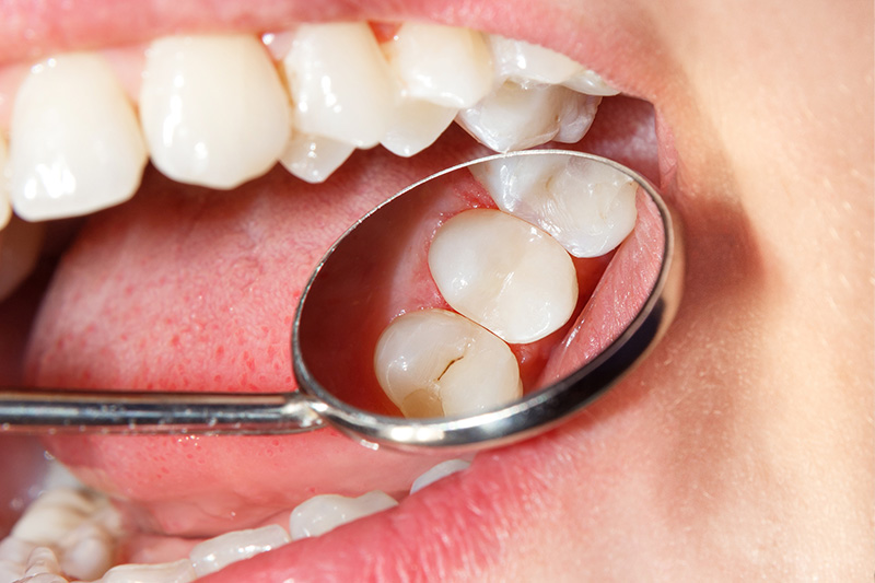 Tooth Colored Composite Fillings  - Two Rivers Dental, Bolingbrook Dentist