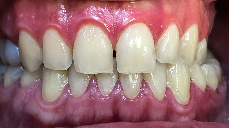 Veneers  - Two Rivers Dental, Bolingbrook Dentist