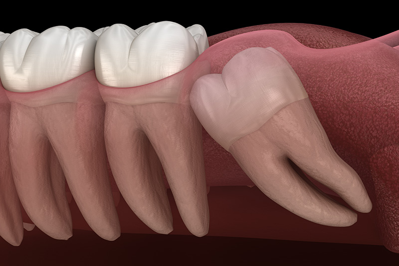Wisdom Teeth Extractions (with Sedation)  - Two Rivers Dental, Bolingbrook Dentist